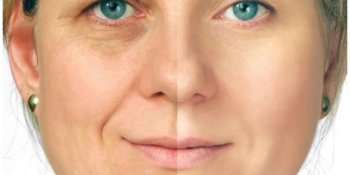 Anti-Aging Peptide Therapy